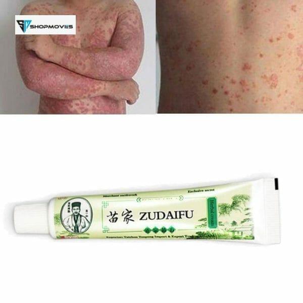 Dropshipping Zudaifu Skin Psoriasis Cream Dermatitis Eczematoid Eczema Ointment Treatment Psoriasis Cream Skin Care Cream Beauty & Health shipsfrom: China|Russian Federation