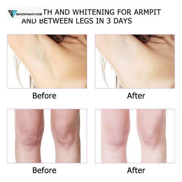 Whitening Cream for Sensitive Area Underarm Cream Lightening Cream for Black Skin Legs Collagen Milk Private Parts Body Lotion Beauty & Health Brand Name: EMURWLECR