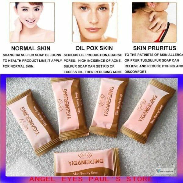 5PCS yiganerjing Soap Trial Pack Skin Antibacterial Treatment Acne Psoriasis Seborrhea Eczema Anti Fungus Bath Beauty Soap Bags Fashion Women's Fashion Brand Name: YIGANERJING